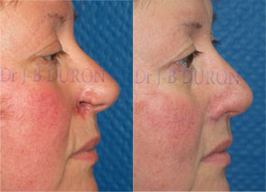 Photos de reconstructions du nez reconstruction du nez rhinoplastie sur specialiste - Bosse sur le nez apres coup ...