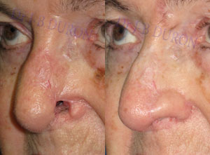 Results Gallery of Nose Reconstruction, reconstruction of