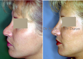 Secondary Rhinoplasty, secondary rhinoplasty rhinoplasty on