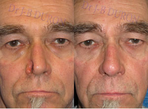 Results Gallery Of Nose Reconstruction Reconstruction Of The Nose Rhinoplasty On Specialiste Rhinoplastie Com